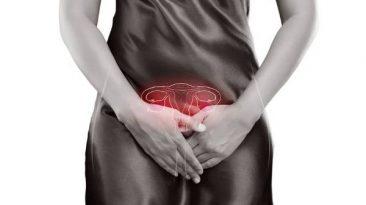 Endometriozis belirtileri