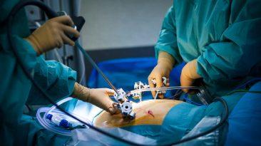 laparoskopi ücretleri 2021