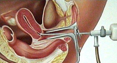 rahimde adhezyon ameliyatı