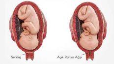 rahim ağzı kısalığı